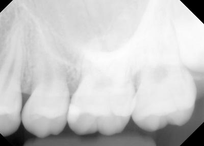 上顎洞炎1.jpg