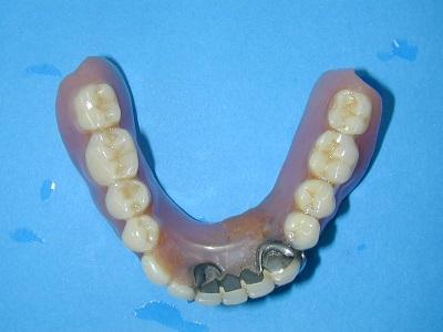 下旧義歯.JPG