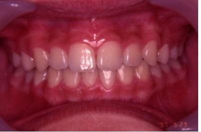 健康歯列.jpg
