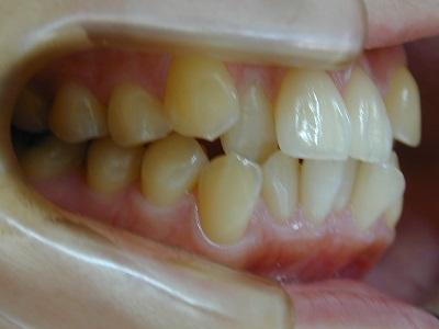 八重歯.JPG