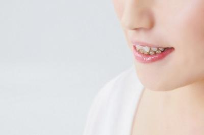 大人の歯並び3.jpg