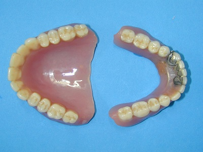 旧義歯.JPG