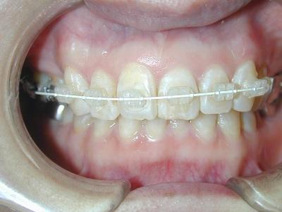 部分矯正前歯術中.JPG