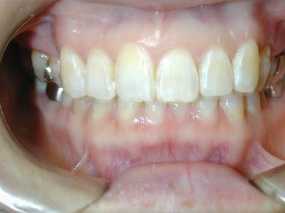 部分矯正前歯術後 (2).JPG