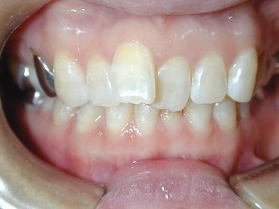 部分矯正前歯術後.JPG